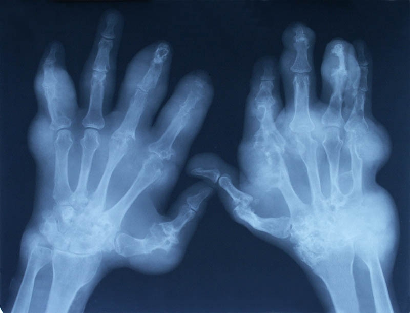 Nice Limits Rheumatoid Arthritis Drugs To Severe Disease Nursing Times