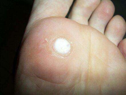 verruca vulgaris foot)
