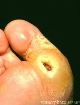 Assessing The Foot In Patients With Diabetes Nursing Times