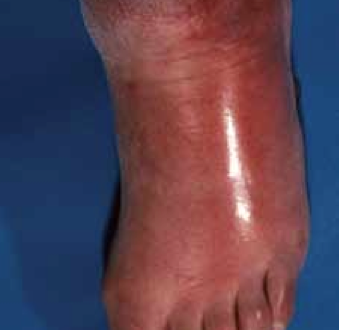 Diagnosing and managing lower limb cellulitis