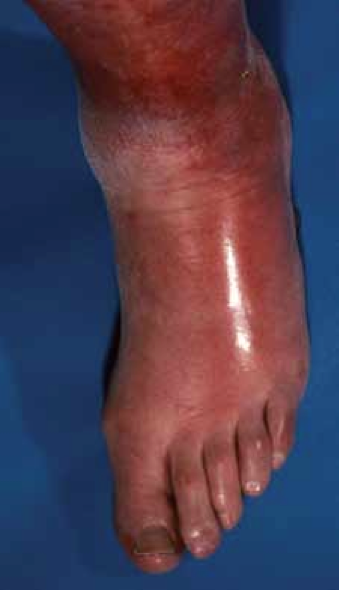 How can I diagnose and treat cellulitis?