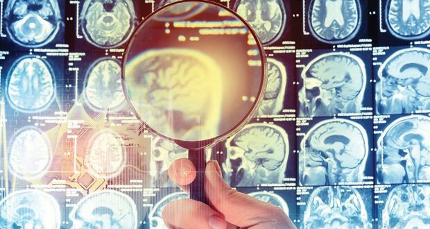 Study suggests role in Alzheimer's disease treatment for