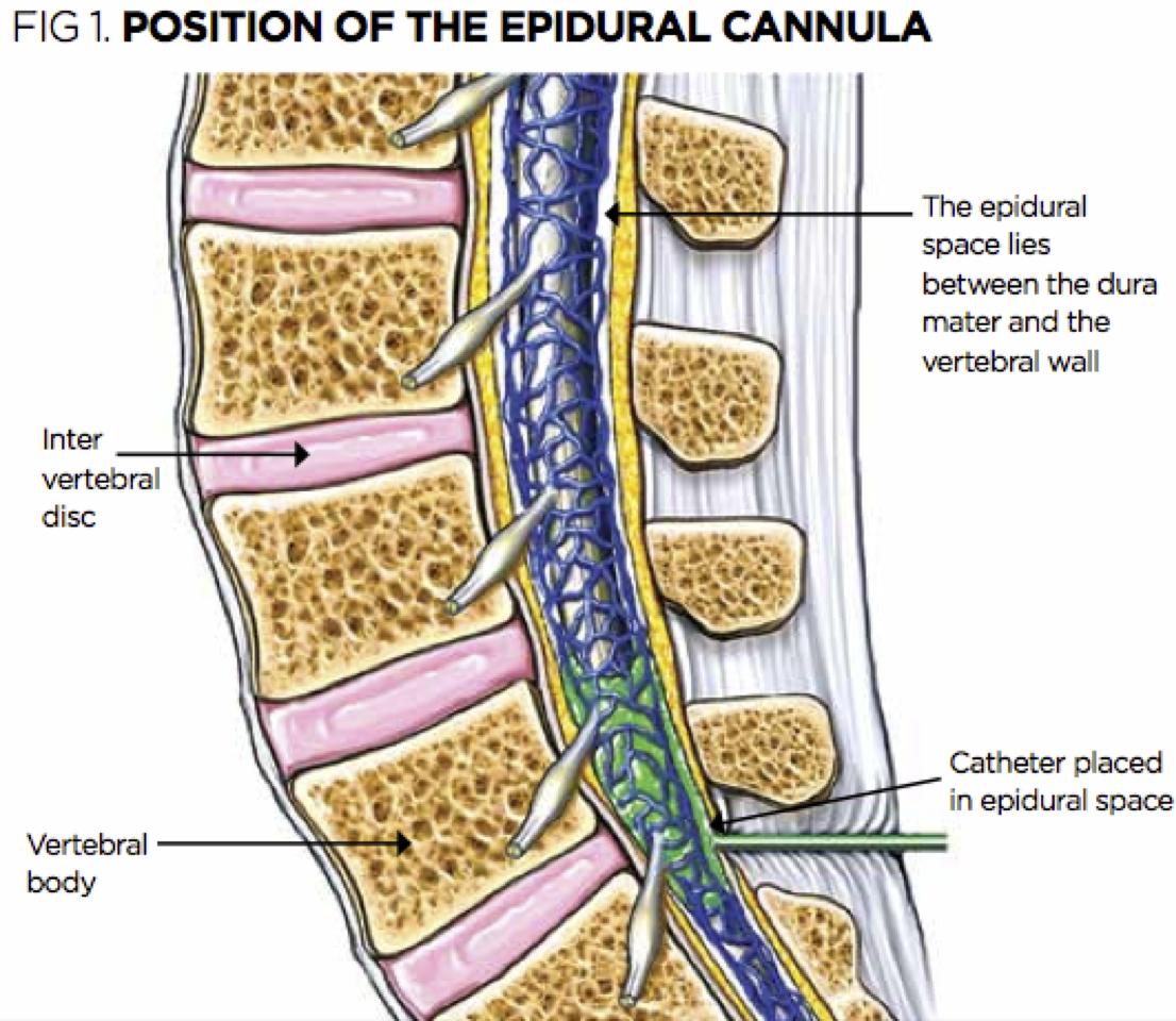 Administering Top-Ups Of Epidural Analgesia  Nursing Times-3697