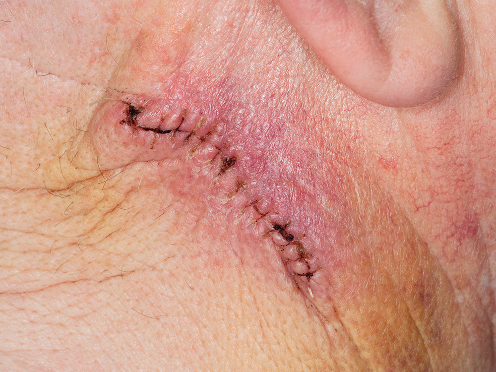 How to reduce the risk of surgical site infection