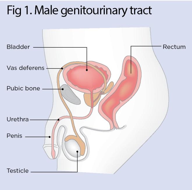 Urinary catheters 1: male catheterisation