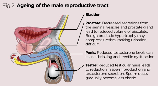 Anatomy And Physiology Of Ageing 8 The Reproductive System Nursing Times