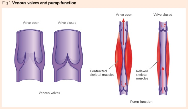 vascular system 3  diseases affecting the venous system