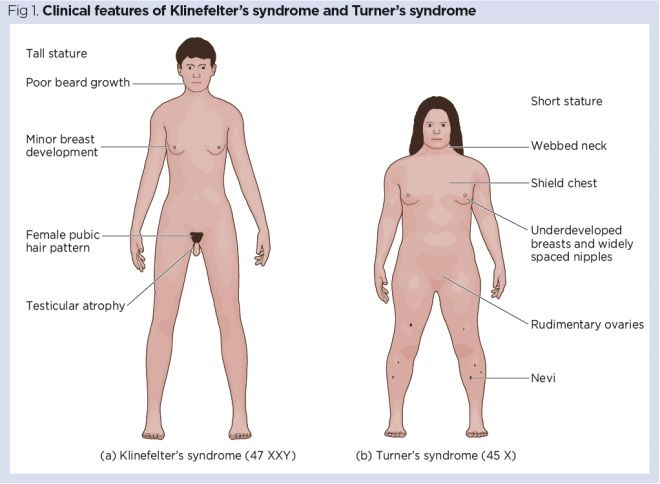 Genes And Chromosomes 4 Common Genetic Conditions Nursing Times