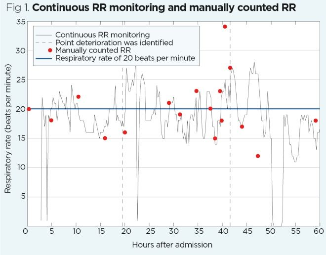 Respiratory rate 6: the benefits of continuous monitoring