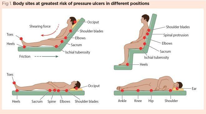 31 Pressure Ulcer Sites Diagram