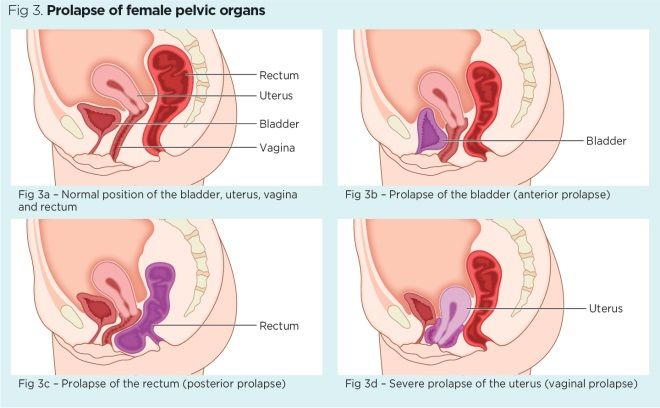 Female pelvic floor 1: anatomy and